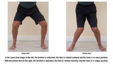 Chuck Wolf foot assessment
