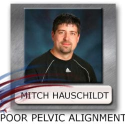 Pelvic Alignment - Ideal Pelvic Position - Pelvic Control